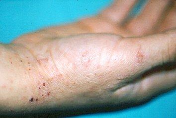 El ungüento para la piel a la psoriasis