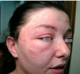 alguna crema para alergia en la cara