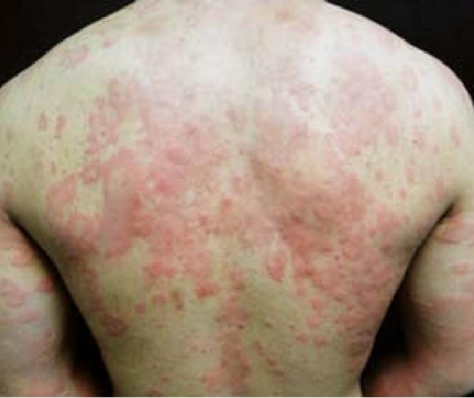 Alergia a la pina causas